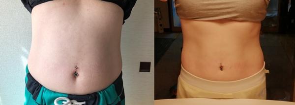 痩せにくい私がリングフィットでダイエットを1年続けた結果!